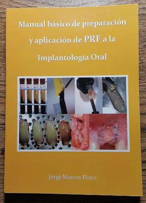 Preparación Y Aplicación De Prf A La Implantología Oral