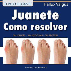 Juanete - Resolver Sin Cirugía - Gustavo Guglielmotti